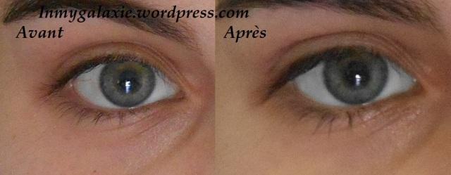 patch yeux avant après